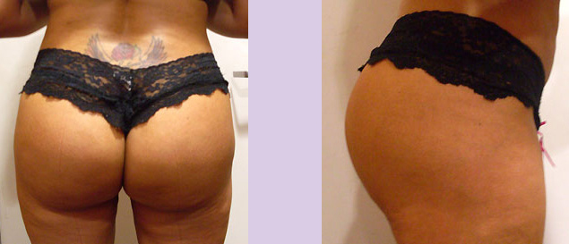 After-Buttock-implant-surgery-330-cc--by-doctor-Chettawut