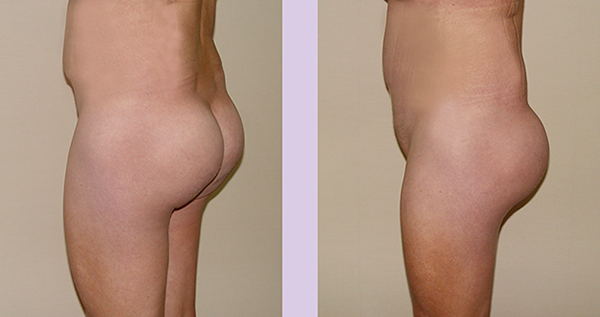 After-Buttock-implant-surgery-360-cc-by-doctor-Chettawut