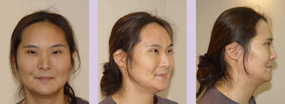 After-Jaw-and-Chin-contouring--case-2-by-Chettawut-MD