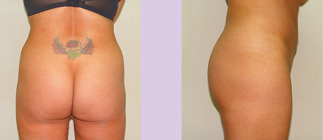 Before-Buttock-implant-surgery-330-cc--by-doctor-Chettawut