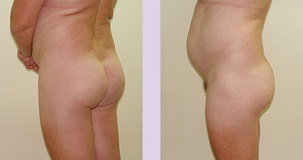 Before-Buttock-implant-surgery-360-cc-by-doctor-Chettawut