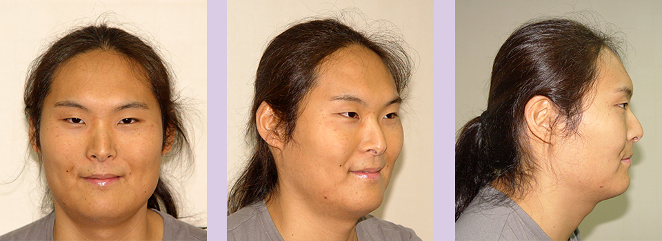 Before-Jaw-and-Chin-contouring--case-2-by-Chettawut-MD