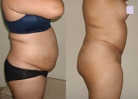 Before-and-after-abdominoplasty-by-Chettawut-MD