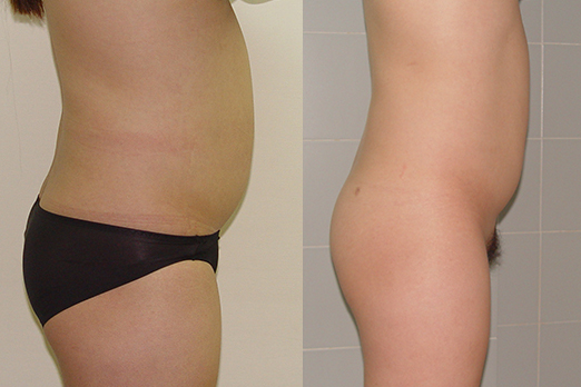 Before-and-after-liposuction-by-Chettawut-MD