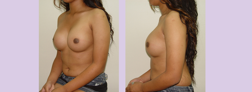 Breast-implant-surgery-380-cc--Doctor-Chettawut-breast-augmnetation-gallery-after-surgery-left-side