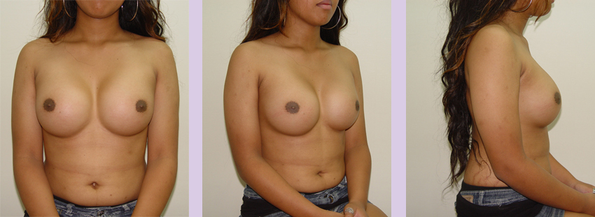 Breast-implant-surgery-380-cc--Doctor-Chettawut-breast-augmnetation-gallery-after-surgery