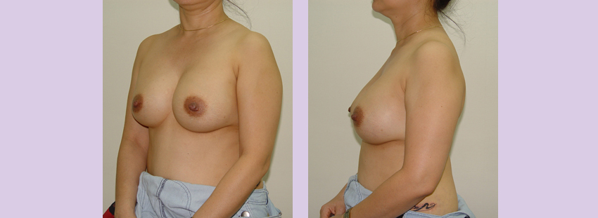 Breast-implant-surgery-435cc--Doctor-Chettawut-breast-augmnetation-gallery-after-surgery
