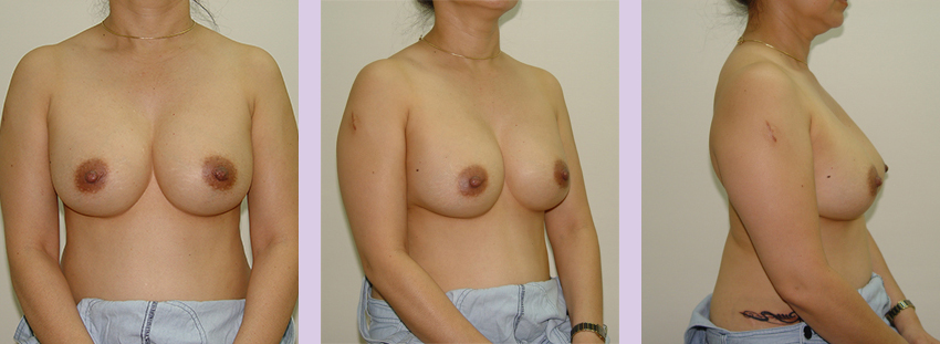 Breast-implant-surgery-435cc--Doctor-Chettawut-breast-augmnetation-gallery-after1-surgery