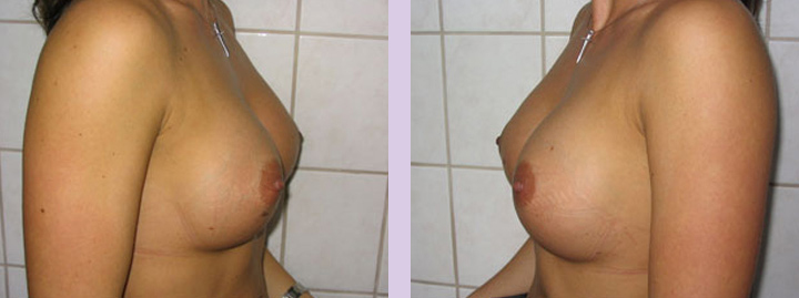 Breast-implant-surgery-470cc--Doctor-Chettawut-breast-augmnetation-gallery-after-surgery