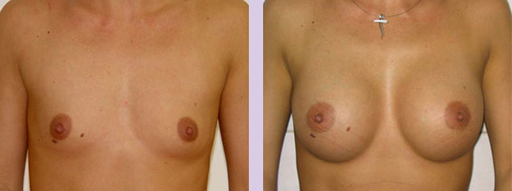 Breast-implant-surgery-470cc--Doctor-Chettawut-breast-augmnetation-gallery-before-and-after-surgery
