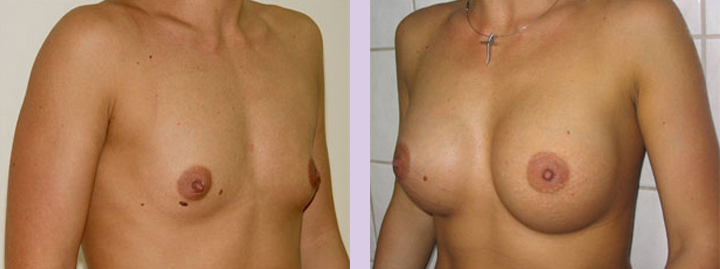 Breast-implant-surgery-470cc--Doctor-Chettawut-breast-augmnetation-gallery-before-and-after1-surgery