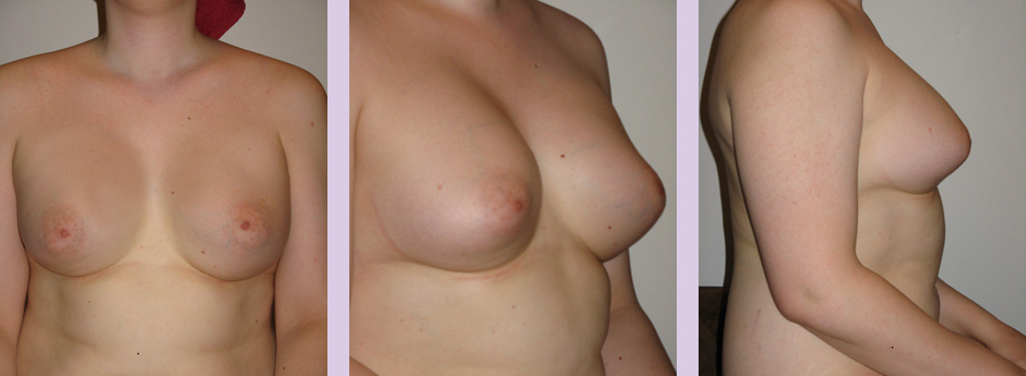 Breast-implant-surgery-600cc--Doctor-Chettawut-breast-augmnetation-gallery-after-surgery-5--years