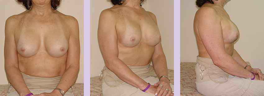 Breast-implant-surgery-600cc--Doctor-Chettawut-breast-augmnetation-gallery-after-surgery