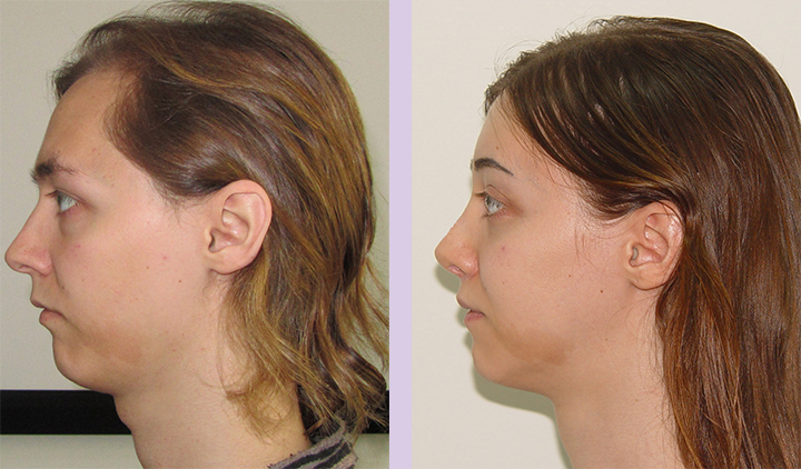 Cosmetic-facial-implant-surgery-by-doctor-Chettawut-Gallery-Case-1-before-and-after-cheek-implant-and-FFS-surgery-2