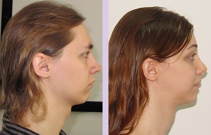 Cosmetic-facial-implant-surgery-by-doctor-Chettawut-Gallery-Case-1-before-and-after-cheek-implant-and-FFS-surgery-3