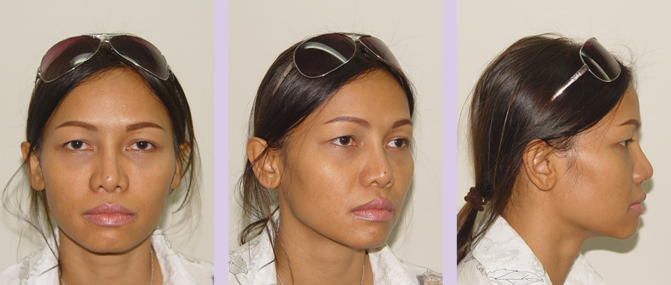 Cosmetic-facial-implant-surgery-by-doctor-Chettawut-Gallery-Case-2-after-nose-implant-and-alarplasty-surgery