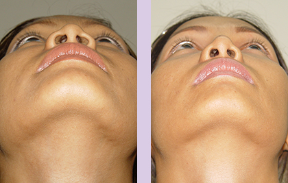 Cosmetic-facial-implant-surgery-by-doctor-Chettawut-Gallery-Case-2-before-and-after-nose-implant-and-alarplasty-surgery