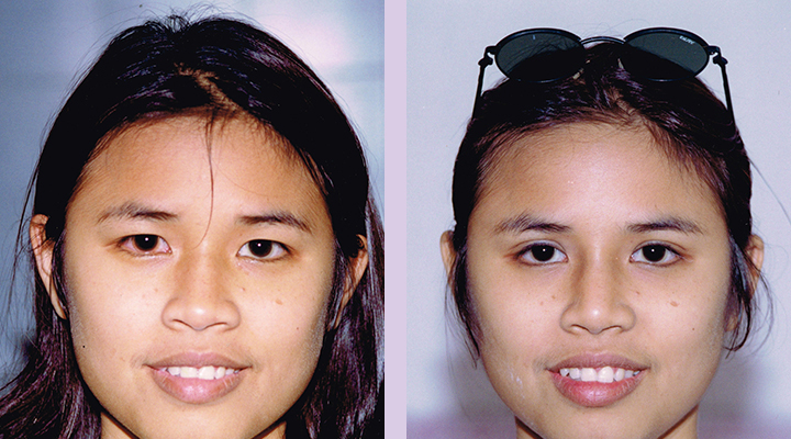 Double-eyelid-surgery-for-Asian--Doctor-Chettawut-facial-cosmetic-surgery-gallery-case-4