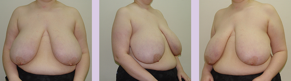 Dr.-Chettawut's-FTM-Breast-surgery-result-before-double-incision-mastectomy