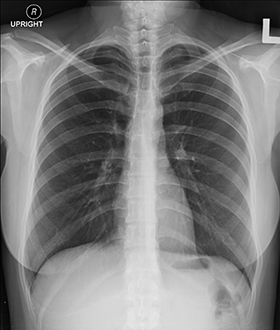 Example-of-chest-x-ray