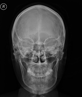 Example-of-skull-x-ray--front-view-
