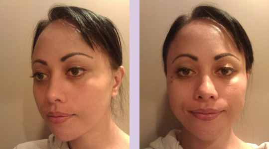 FFS3-Brow-bone-bossing-reduction+Jaw-and-Chin-contouring-surgery-after