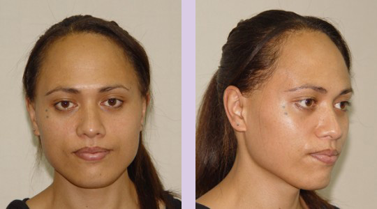 FFS3-Brow-bone-bossing-reduction+Jaw-and-Chin-contouring-surgery-before