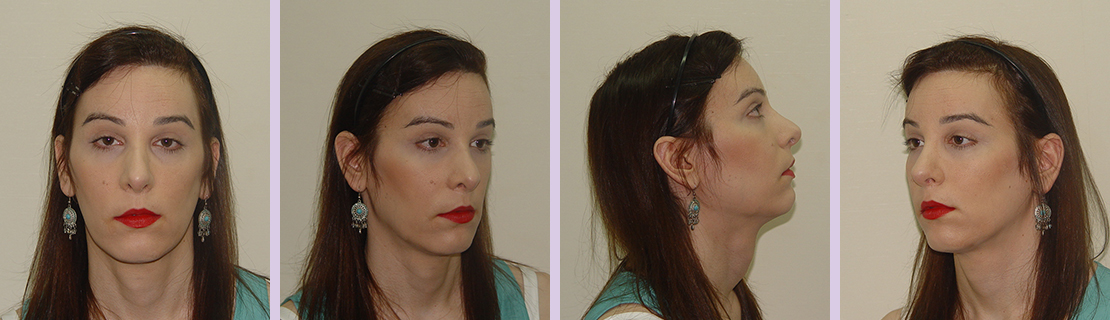 Facial-feminization-for-forehead-and-nose-(Dr.Chettawut-FFS-after-surgery)
