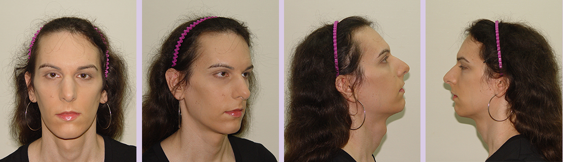Facial-feminization-for-forehead-and-nose-(Dr.Chettawut-FFS-before-surgery)