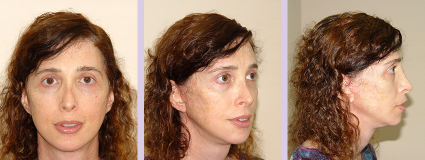 Facial-feminization-surgery-by-doctor-Chettawut-Gallery-B-1-after-surgery
