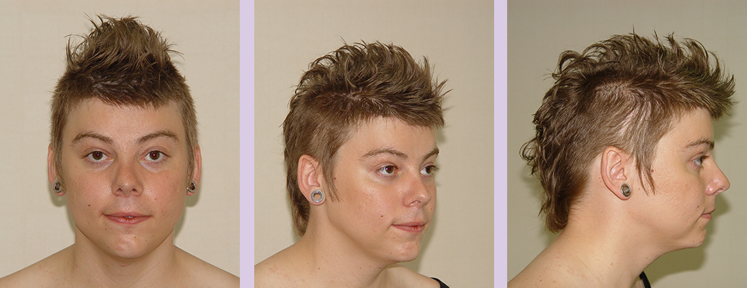 Facial-feminization-surgery-by-doctor-Chettawut-Gallery-C-2-after-surgery