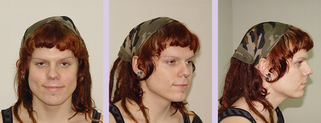 Facial-feminization-surgery-by-doctor-Chettawut-Gallery-C-2-before-surgery