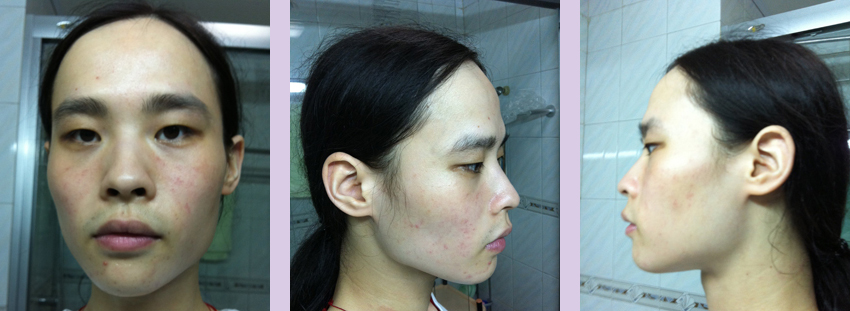 Facial-feminization-surgery-by-doctor-Chettawut-Gallery-C-3-before-surgery