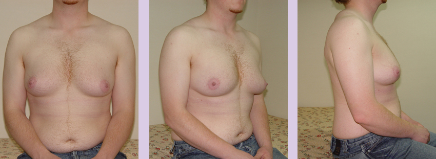 Female-to-Male-top-surgery-by-doctor-Chettawut-Gallery--before-total-breast-removal-surgery