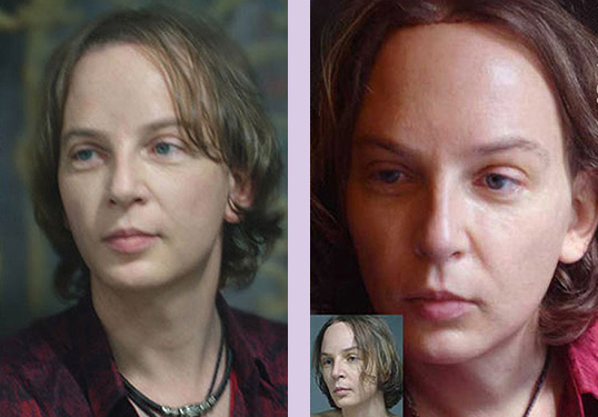 Forehead-brow-lift-surgery--Doctor-Chettawut-face-and-body-contouring-gallery-after-surgery