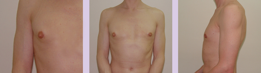 Gynecomastia-surgery-doctor-Chettawut-Gallery--after-total-breast-removal-surgery