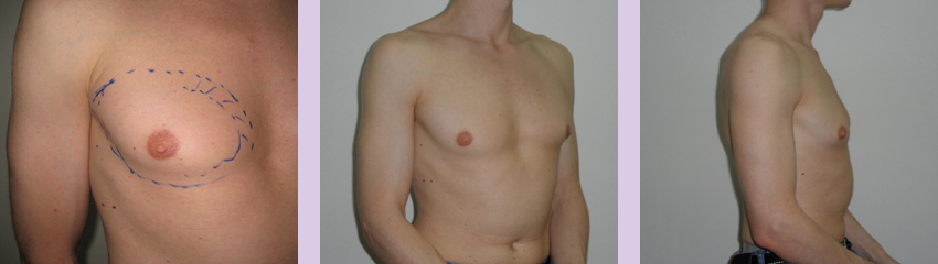Gynecomastia-surgery-doctor-Chettawut-Gallery--before-total-breast-removal-surgery
