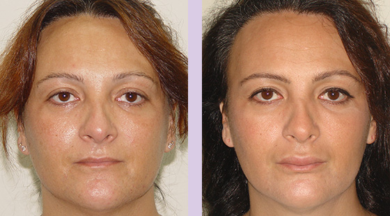 Lip-augmentation-surgery--Doctor-Chettawut-face-and-body-contouring-gallery