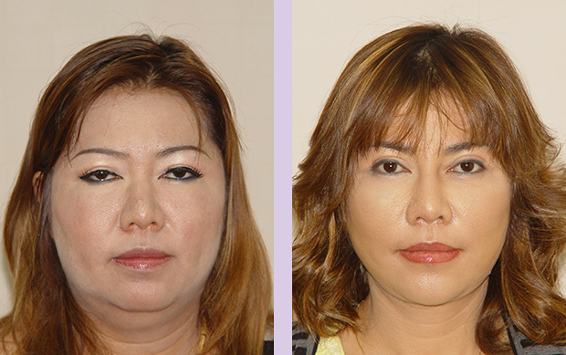 Liposuction-face-and-neck-with-face-and-neck-lift-surgery-case-1-doctor-Chettawut-facial-contouring-surgery-gallery