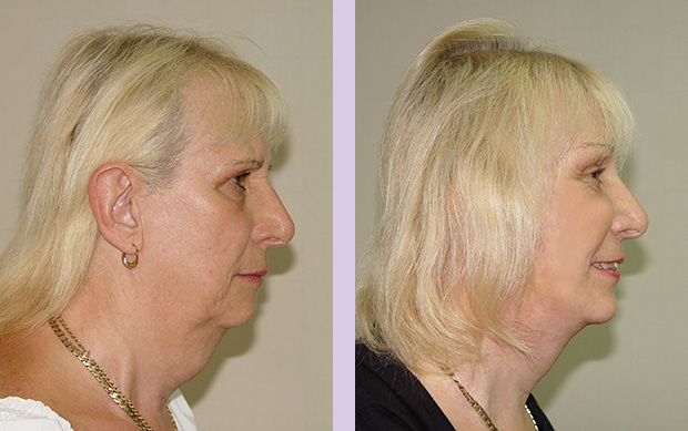 Liposuction face and neck with face and neck lift surgery-case-2-doctor-Chettawut facial contouring surgery gallery