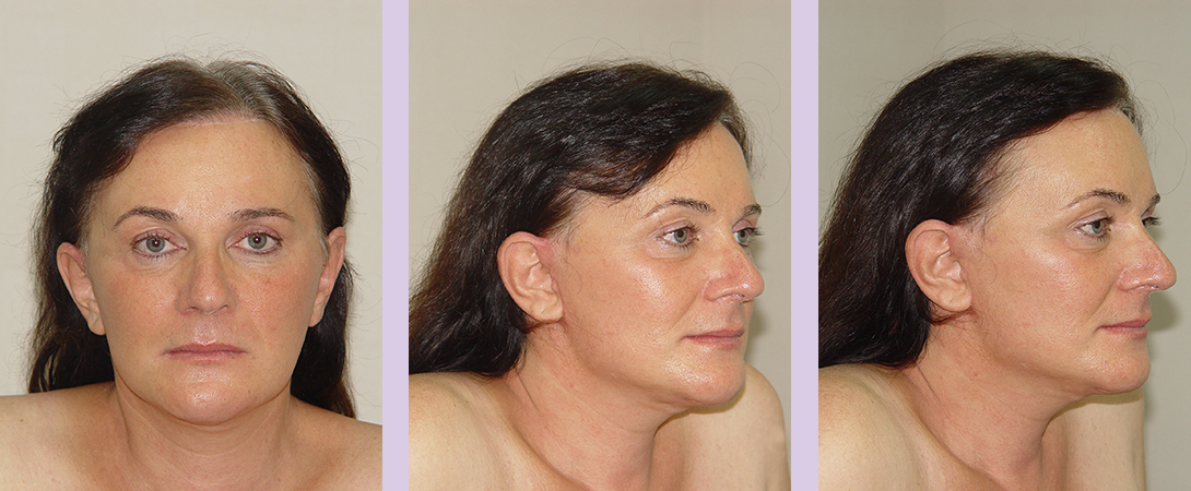 Partial-facial-feminization-surgery-by-doctor-Chettawut-case-2-after-surgery