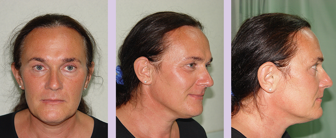 Partial-facial-feminization-surgery-by-doctor-Chettawut-case-2-before-surgery