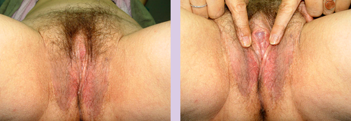 SRS-Gallery-case-4-doctor-Chettawut-Sex-reassignment-surgery-result