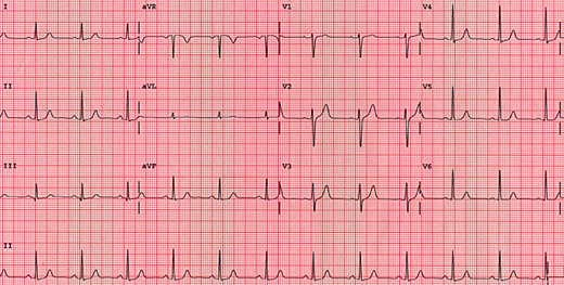 Standard 12 lead EKG requirement from Chettawut Plastic Surgery Center