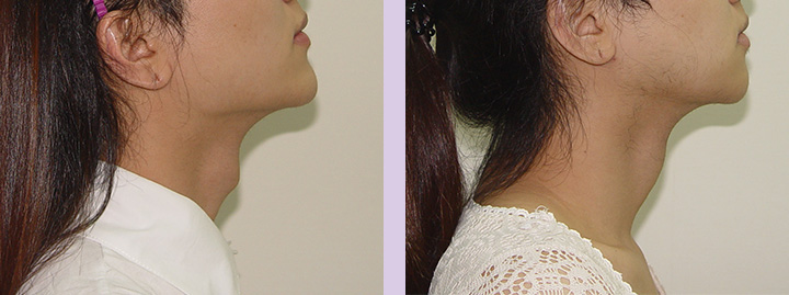 Trachea-Shave-Surgery-before-and-after-case-3-by-doctor-Chettawut-Baangkok-Thailand