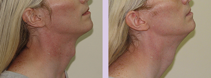 Trachea-Shave-Surgery-before-and-after-case-6-by-doctor-Chettawut-Baangkok-Thailand